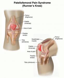 Укрепляем колени